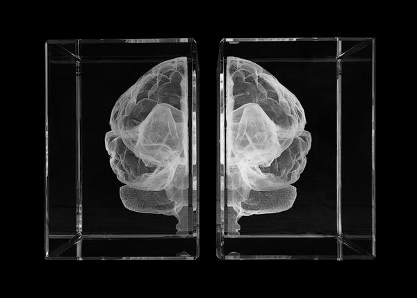 brains-wellcome-7.jpg